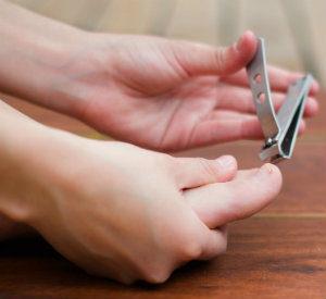 Trimming an ingrown toenail
