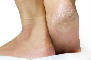 Dry Skin on Heels