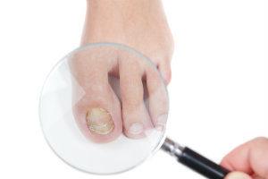 A look at nail fungus