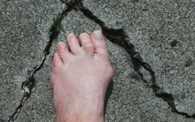 Distinguishing Your Toe Deformity