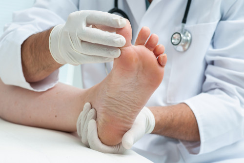 Toe Care after an Ingrown Nail Removal